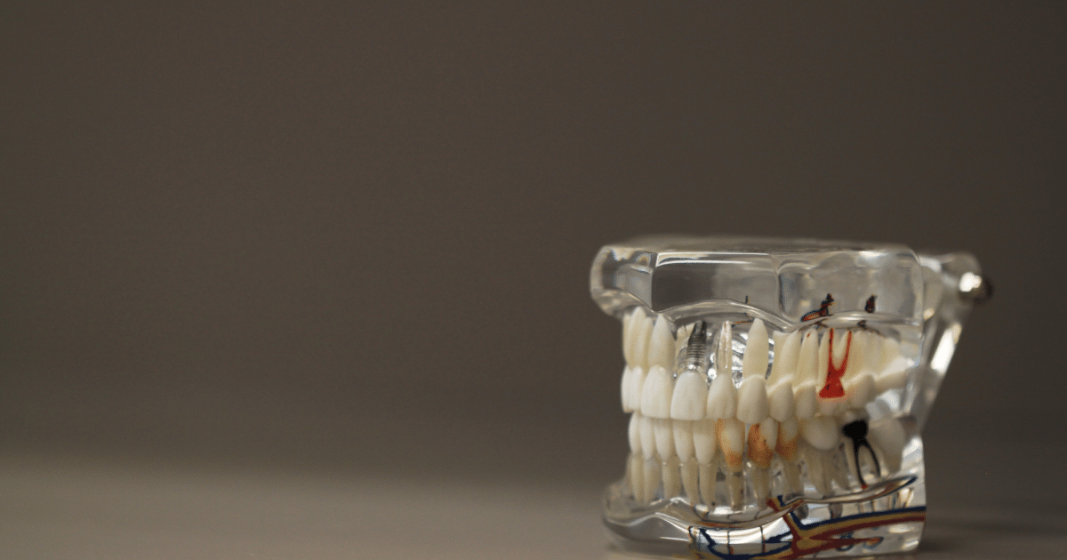 Just How Bad Is Soda For Your Teeth – Shield Insurance Agency Blog